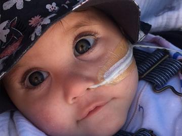 Baby Eva – Complex care from birth